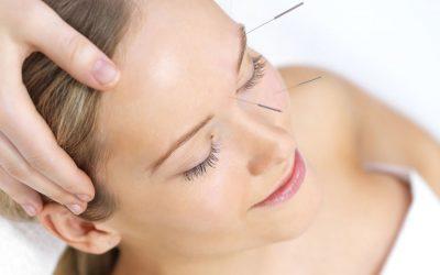 Mit Nadeln zum Glow: Wie Akupunktur dir ein frisches Strahlen verleiht